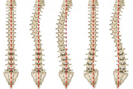 vrste skolioze